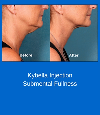 Kybella InjectionSubmental Fullness