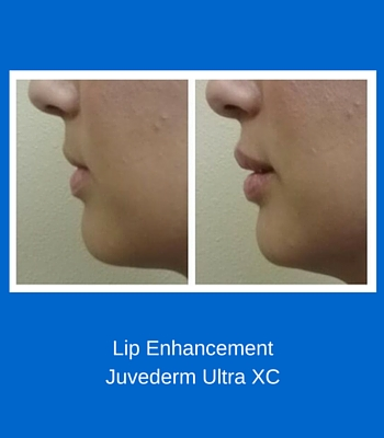 Lip EnhancementJuvederm Ultra XC (2)