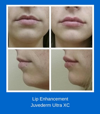 Lip EnhancementJuvederm Ultra XC (3)