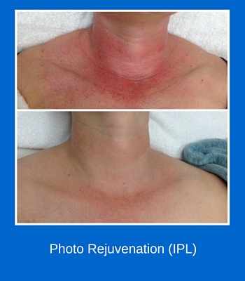Photo Rejuvenation (IPL) 1
