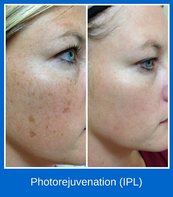 Photorejuvenation (IPL)