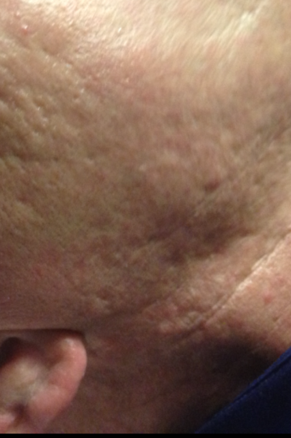 RP Neck Scar Before