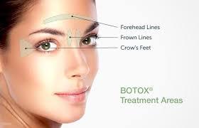 botox-injectibles-treatment