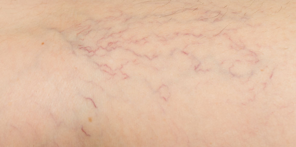 varicose veins on the skin