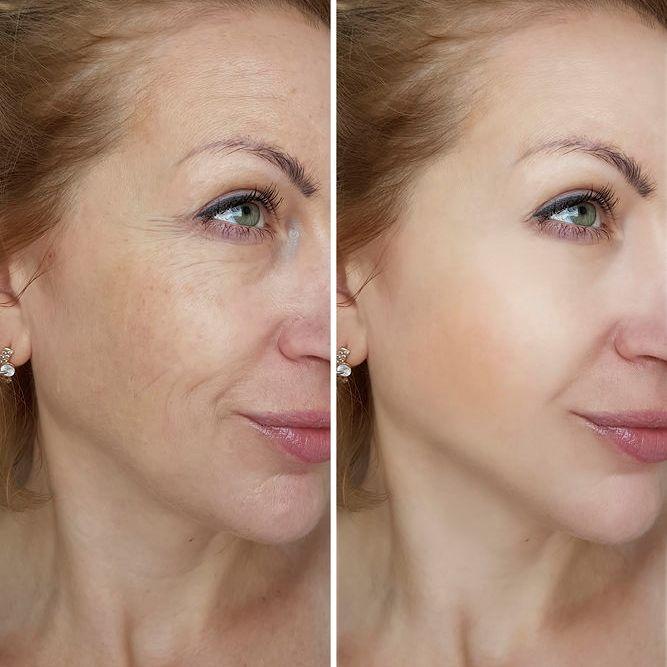 PHOTOREJUVENATION – Laser Hair Removal | Doucet Medical Spa