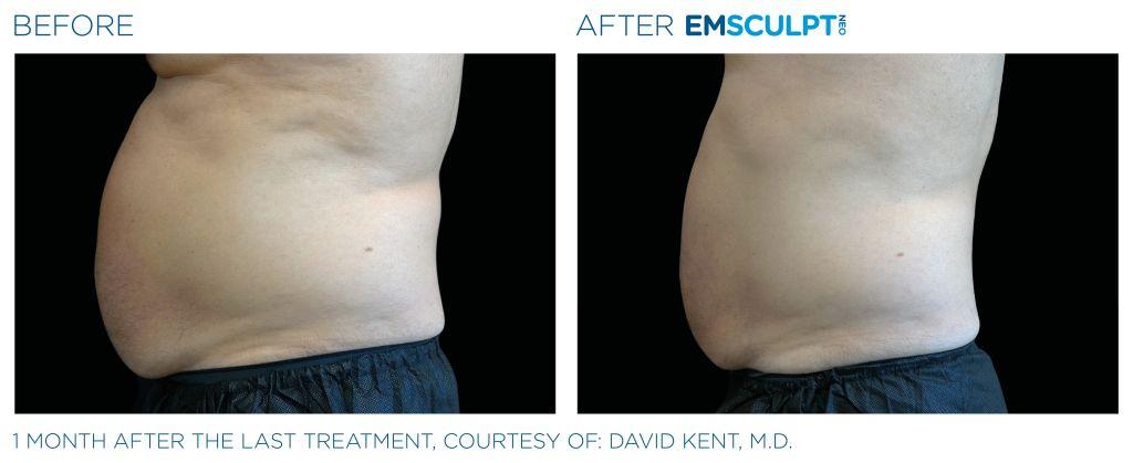 Emsculpt_neo_male-abdomen-corpus