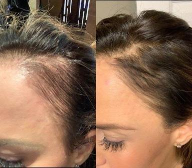 keravive-treatment-before-after